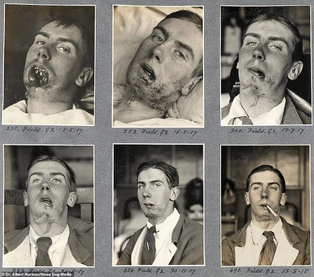 Hé lộ những thành công đầu tiên của cha đẻ ngành phẫu thuật thẩm mỹ - ảnh 2