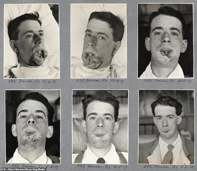 Hé lộ những thành công đầu tiên của cha đẻ ngành phẫu thuật thẩm mỹ - ảnh 3