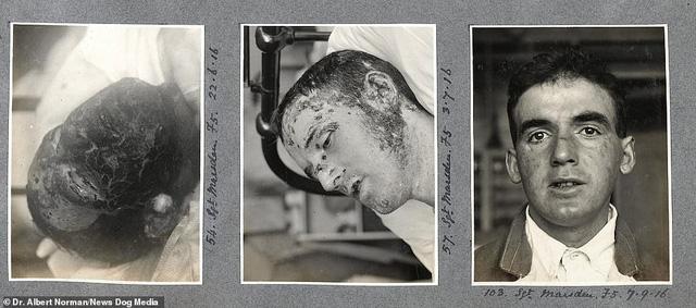 Hé lộ những thành công đầu tiên của cha đẻ ngành phẫu thuật thẩm mỹ - Ảnh 4.