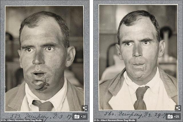 Hé lộ những thành công đầu tiên của cha đẻ ngành phẫu thuật thẩm mỹ - ảnh 6