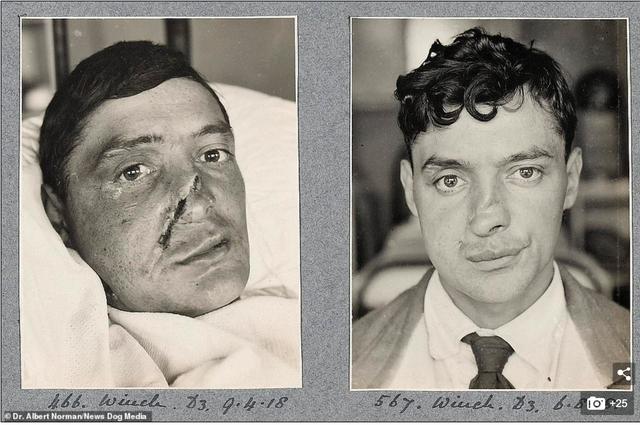 Hé lộ những thành công đầu tiên của cha đẻ ngành phẫu thuật thẩm mỹ - ảnh 7