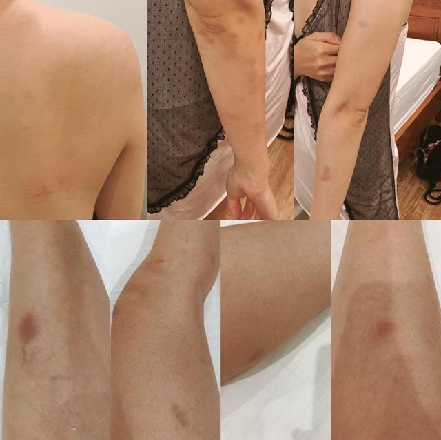 DV Hoàng Mai Anh trầy xước, bầm tím vì vai diễn mới - Ảnh 1.