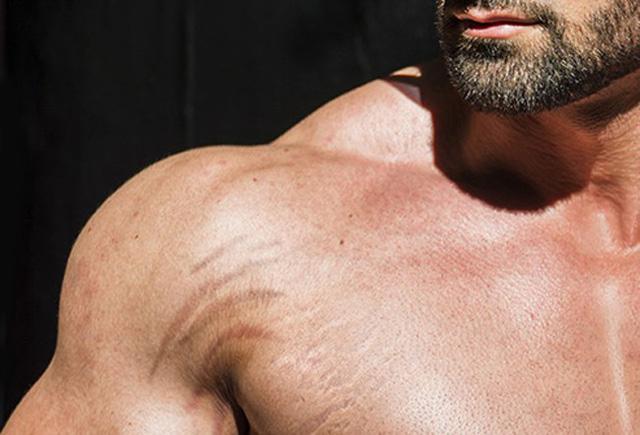 Nguyên nhân gây rạn da và cách khắc phục - Ảnh 1.