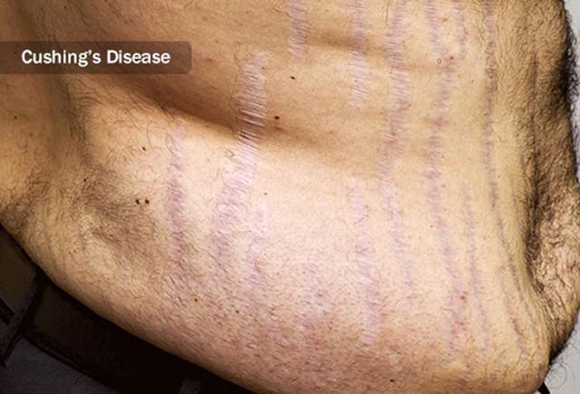 Nguyên nhân gây rạn da và cách khắc phục - Ảnh 4.