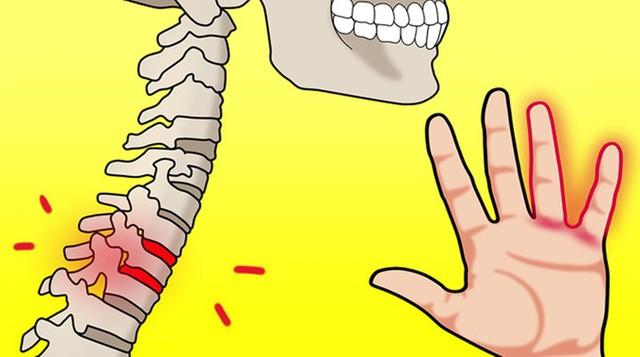 10 triệu chứng tê tay báo hiệu bệnh nguy hiểm - Ảnh 9.