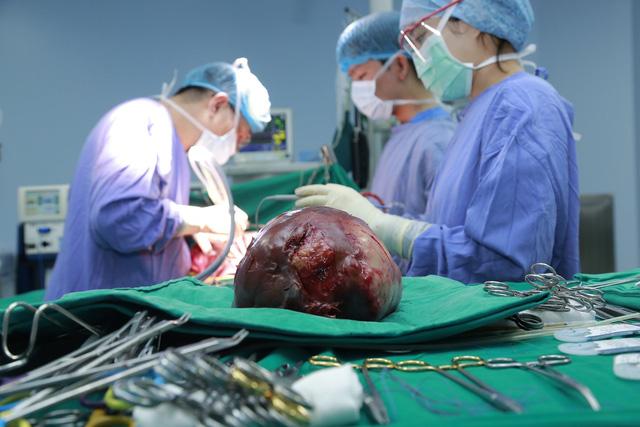 5 giờ phẫu thuật cắt bỏ khối u gan khổng lồ - Ảnh 2.