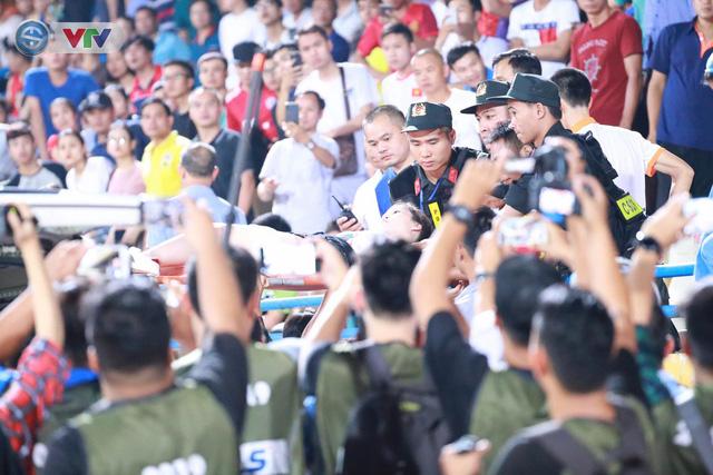 Nữ CĐV trúng pháo sáng phải đi cấp cứu trong trận CLB Hà Nội – DNH Nam Định - Ảnh 3.
