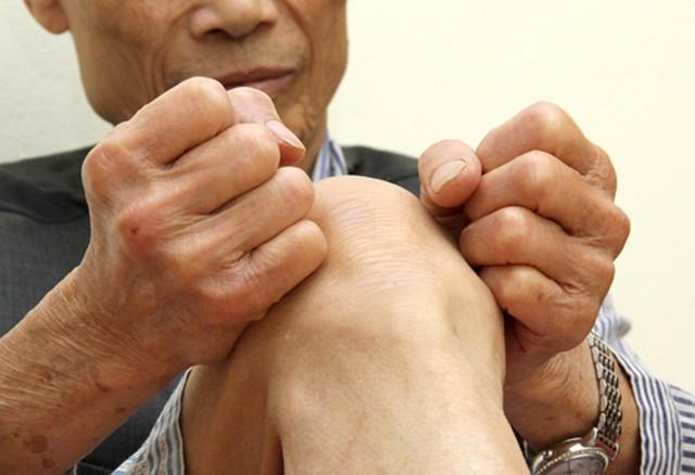 """Khớp Phong giúp """"đánh bại"""" các bệnh xương khớp hiệu quả cao gấp nhiều lần nhờ kết hợp đông dược và tân dược - Ảnh 1."""