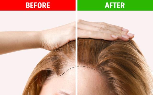 Mẹo dưỡng tóc đơn giản tại nhà - ảnh 6