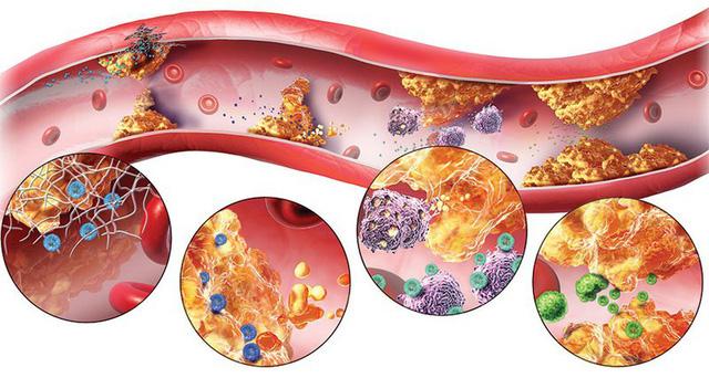 Nần nghệ, loại dược liệu hiếm trong việc hỗ trợ điều trị mỡ máu - Ảnh 1.