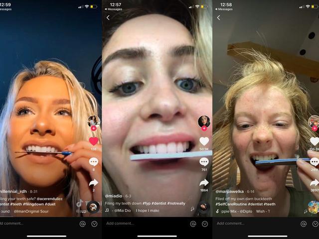 Xu hướng mài răng trên TikTok: Thẩm mỹ hay rủi ro sức khoẻ? - Ảnh 1.