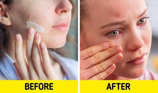 Tác hại khó lường khi sử dụng 7 sản phẩm chăm sóc da này sai cách - Ảnh 2.