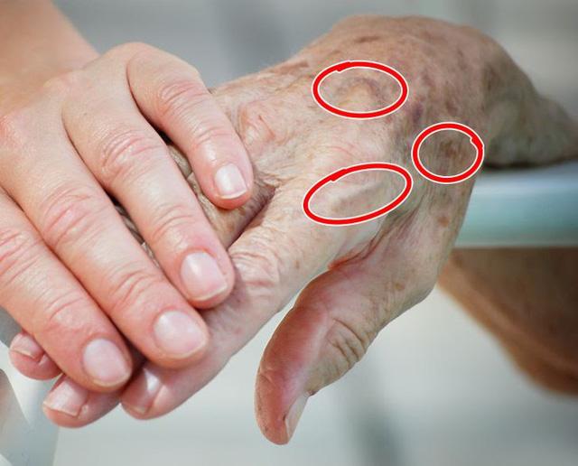 7 bộ phận lão hóa sớm nhất trên cơ thể - Ảnh 2.