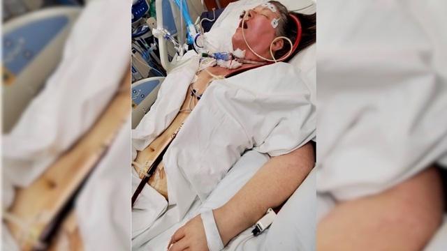 Bệnh nhân phải ghép phổi sau nhiều tháng hôn mê vì COVID-19 - Ảnh 1.