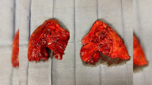 Bệnh nhân phải ghép phổi sau nhiều tháng hôn mê vì COVID-19 - Ảnh 2.