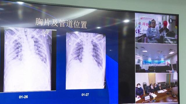 Dịch bệnh do virus Corona mới: Trung Quốc ứng dụng công nghệ khám chữa bệnh từ xa - Ảnh 3.