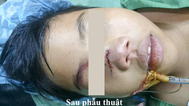 Bé trai ở Miền Tây bị khúc gỗ đâm xuyên thấu mũi - Ảnh 2.