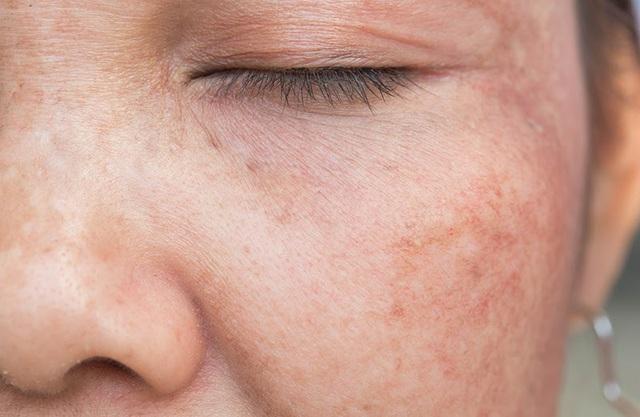"""Tất cả những điều bạn cần biết về """"tăng sắc tố da"""" - Ảnh 1."""