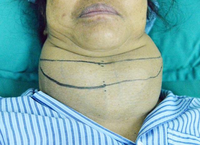 Bóc tách khối bướu basedow gần 13cm cho bệnh nhân nữ ở Sơn La - Ảnh 1.
