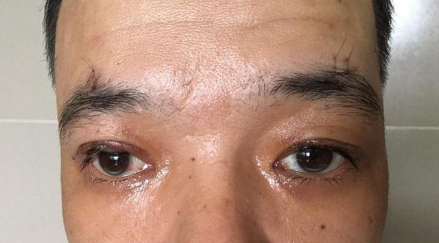 Phẫu thuật điều trị sụp mi - cải thiện chức năng thị giác - Ảnh 1.