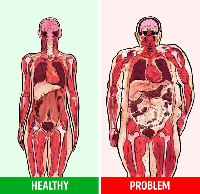 Mỡ bụng có thể làm tăng nguy cơ mắc bệnh ung thư - Ảnh 1.