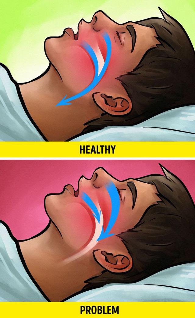 Hiểm họa sức khỏe bất ngờ khi bạn ngủ quá nhiều - ảnh 7