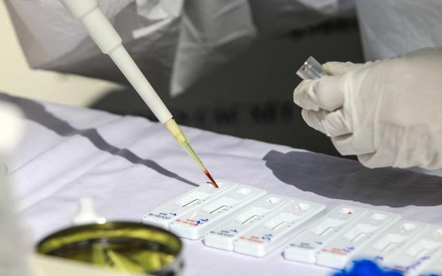 Nhiều trường hợp có dấu hiệu đau họng, sốt từ Đà Nẵng trở về đã âm tính với virus SARS-CoV-2 - Ảnh 1.