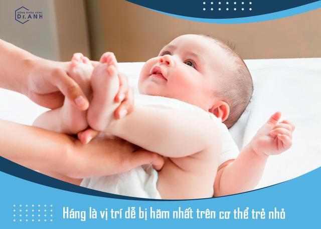 Bỏ túi mẹo trị hăm siêu đơn giản dành cho bé yêu - Ảnh 1.
