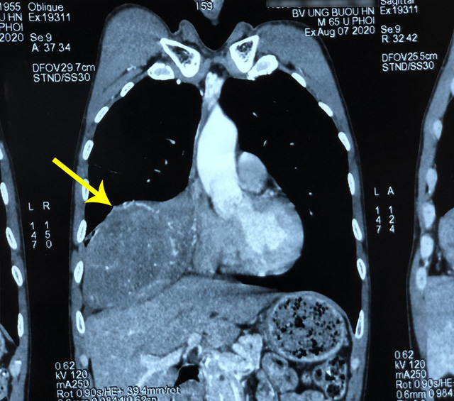 Bị xẹp phổi do khối u hiếm gặp trong lồng ngực - Ảnh 1.