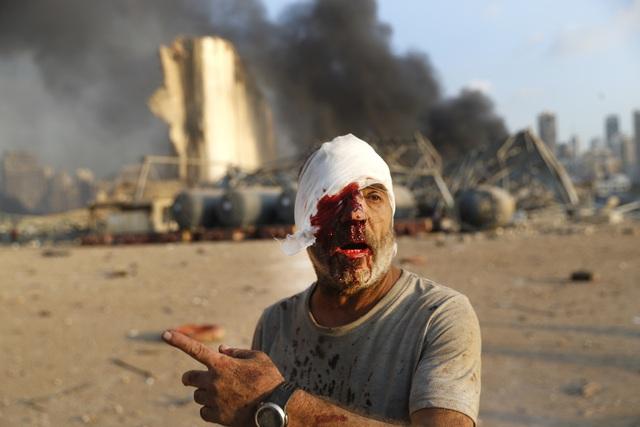 Nổ lớn làm rung chuyển thủ đô Lebanon, 73 người thiệt mạng, hàng nghìn người bị thương - ảnh 5