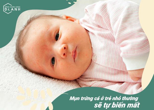 Top 5 nguyên nhân hàng đầu khiến trẻ sơ sinh bị nổi mẩn đỏ - Ảnh 1.