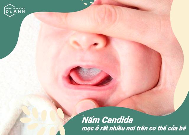 Top 5 nguyên nhân hàng đầu khiến trẻ sơ sinh bị nổi mẩn đỏ - Ảnh 3.