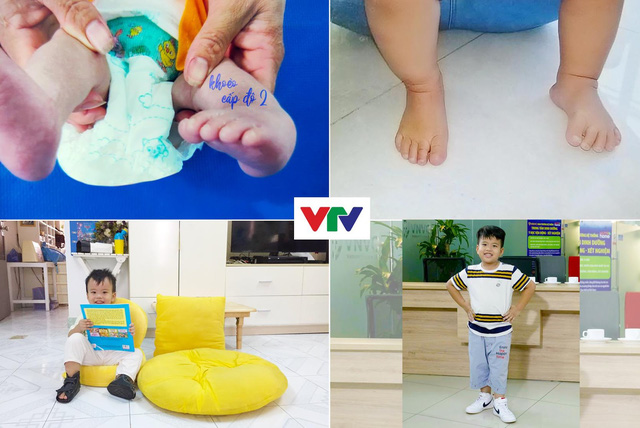 """Cảm động bé 6 tuổi bị """"khoèo chân"""" kiên trì điều trị để đi lại bình thường - Ảnh 2."""