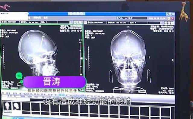 Sốc khi phát hiện 2 chiếc kim châm cứu găm sâu trong não bệnh nhân - Ảnh 1.