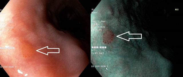 Phát hiện ung thư ống tiêu hóa giai đoạn sớm - Ảnh 3.