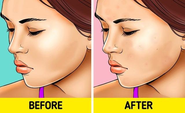 7 điều sẽ khiến bạn hối hận nếu không tẩy trang trước khi ngủ - ảnh 2