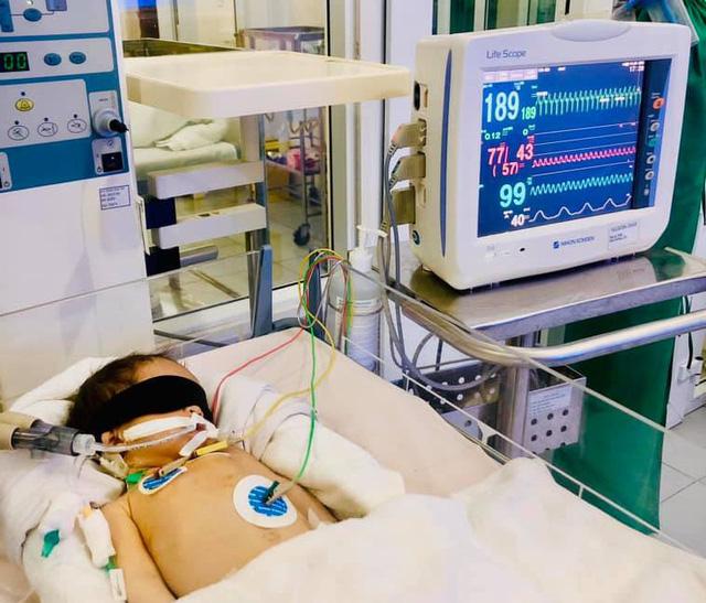 Nỗ lực cứu bé 22 ngày tuổi xuất huyết não nguy kịch - Ảnh 1.