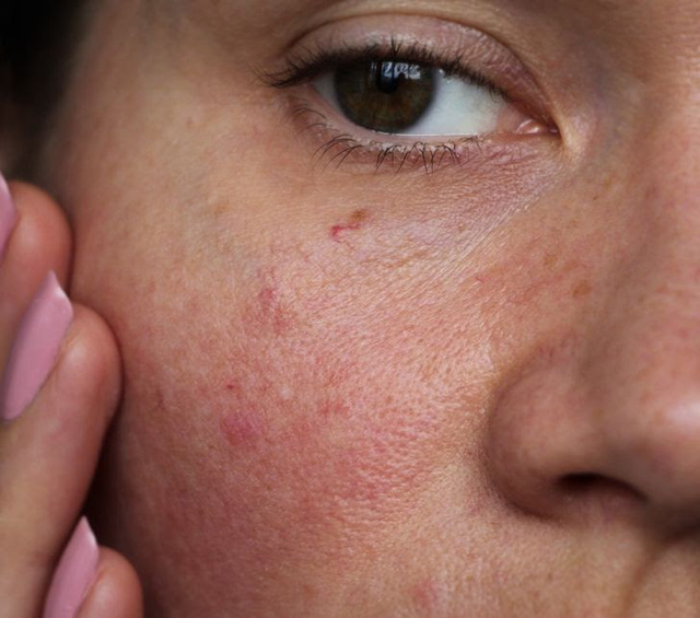 5 tác dụng làm đẹp da tuyệt vời từ việc tắm nước lạnh - ảnh 5