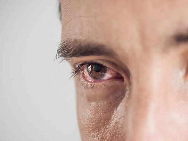 Đau mắt cũng có thể là dấu hiệu của COVID-19 - Ảnh 1.