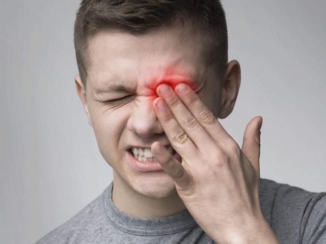Đau mắt cũng có thể là dấu hiệu của COVID-19 - Ảnh 2.