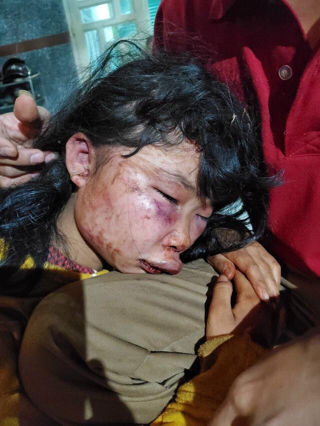 Nữ sinh lớp 6 bị đánh đập dã man trên đường đi học về | VTV.VN