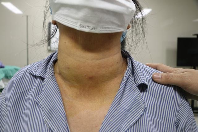 Phẫu thuật khối u tuyến giáp lớn hơn mức bình thường cho bệnh nhân 71 tuổi - Ảnh 1.