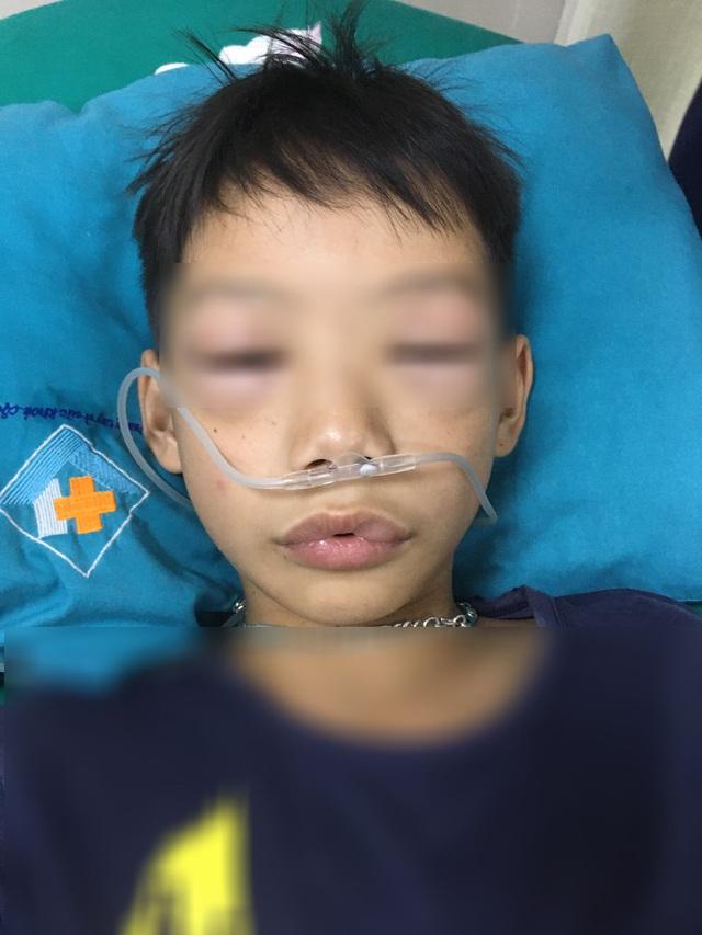 Bé trai 10 tuổi sốc phản vệ sau uống thuốc tự mua - Ảnh 1.