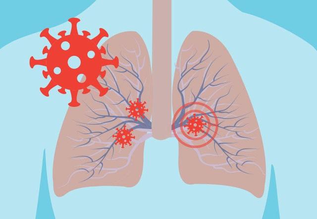 COVID-19: Những triệu chứng khẩn cấp không nên phớt lờ - ảnh 3