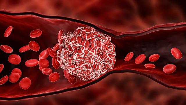 Cục máu đông, nguyên nhân dẫn tới đột quỵ ở người bệnh COVID-19 - Ảnh 1.