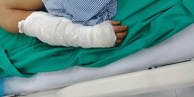 Hoại tử bàn tay do tự ý chữa vết rắn hổ mang cắn bằng thuốc nam - Ảnh 2.