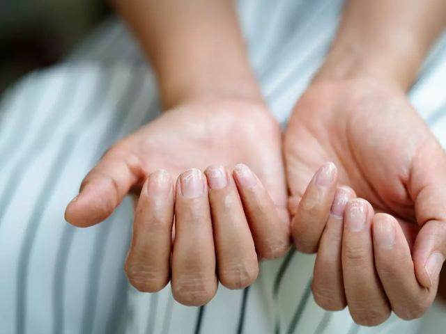COVID-19: Triệu chứng đáng chú ý ở móng tay và chân - ảnh 1
