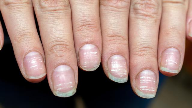 COVID-19: Triệu chứng đáng chú ý ở móng tay và chân - ảnh 3
