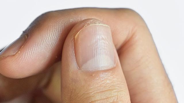 COVID-19: Triệu chứng đáng chú ý ở móng tay và chân - ảnh 4