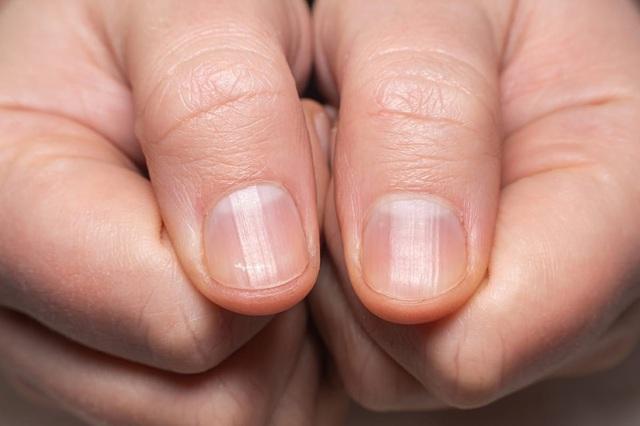COVID-19: Triệu chứng đáng chú ý ở móng tay và chân - ảnh 5